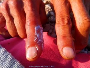 Baffos Wespenstich am Salanti Beach – Greece