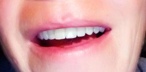 Mein neues Lächeln - Platja L'Almadrava – Spain